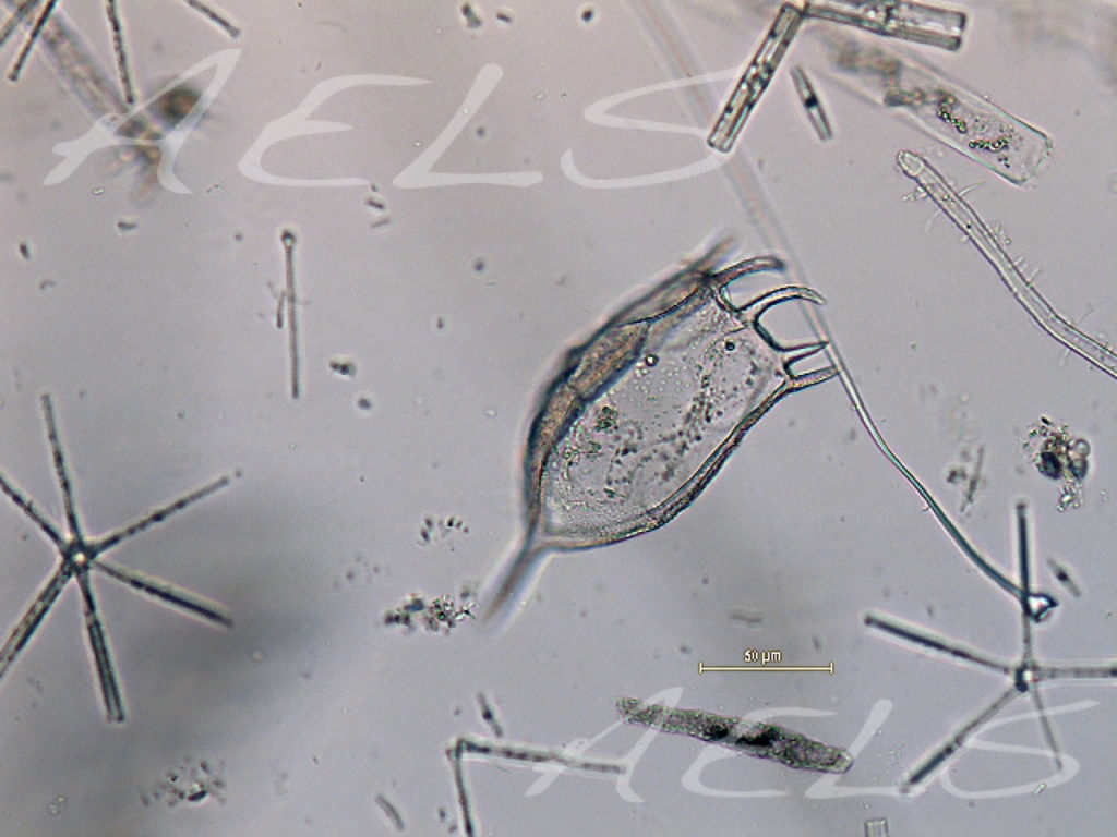 Keratella cochlearis 20x
