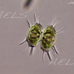 Xanthidium antilopaeum 40X DIC