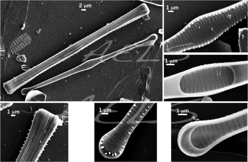 collage Tabellaria MEB