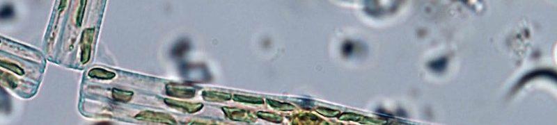 Tabellaria, detalle cadenas